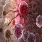 O Estudo do Câncer - Oncologia - Enfermagem